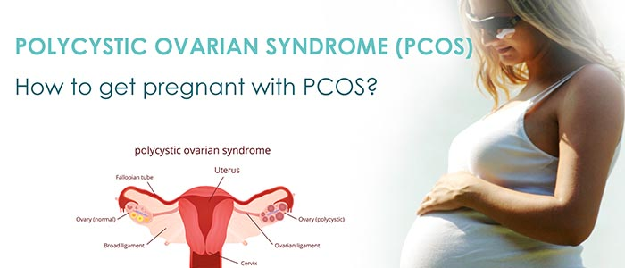 What Women Need To Know About Polycystic Ovary Syndrome ( PCOS )