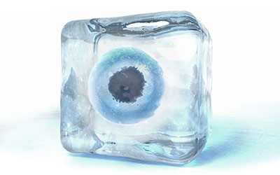 Fertility Preservation / Freezing