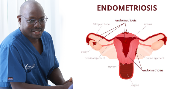 All about endometriosis and infertility